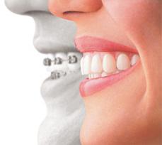 braces6