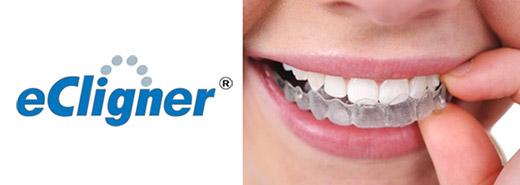 braces8