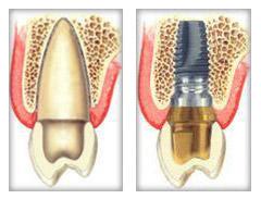 dental_implants